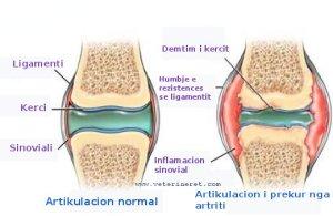 gju me artrit1