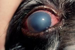 Glaukoma tek qeni