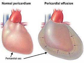 perikarditis zemra